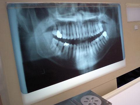 私の歯のレントゲン写真です